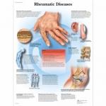3B Scientific VR1124L, Laminated Rheumatic Diseases Chart, English
