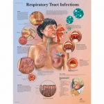 3B Scientific VR1253L, Respiratory Tract Infections Chart, English