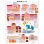 3B Scientific VR1295L, Laminated Skin Cancer Chart, English
