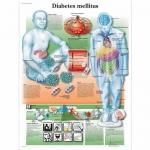3B Scientific VR1441L, Laminated Diabetes Mellitus Chart, English