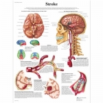 3B Scientific VR1627L, Laminated Stroke Chart, English