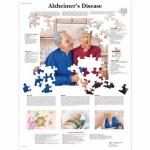 3B Scientific VR1628L, Laminated Alzheimer's Disease Chart, English
