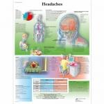 3B Scientific VR1714L, Laminated Headaches Chart, English