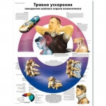 "3B Scientific VR6761UU, Chart ""Acceleration Injury Spine"" Russian"